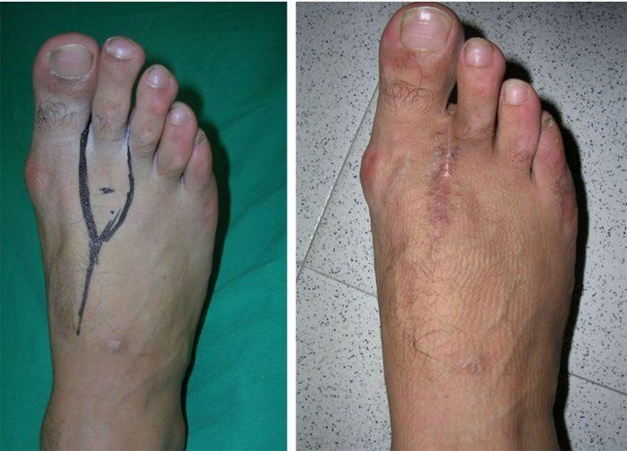 Trasplantes de dedos de pies a manos una realidad